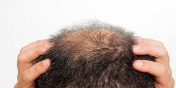 What Are Your Hair Loss Causes & How Acupuncture Help In This